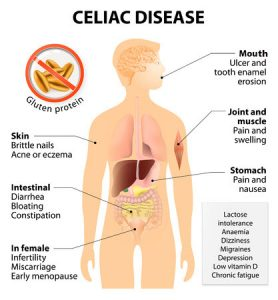 ibs symptoms celia disease